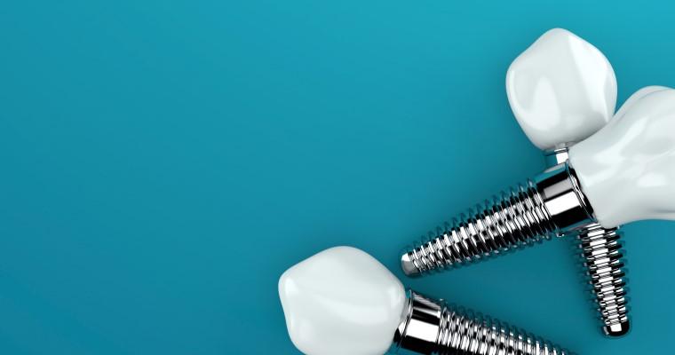 Dental implants on a teal background